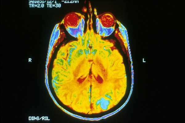 Учёные научились бороться с неизлечимым раком мозга